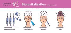 Biorivitalizzazione - Dr. Franca Sbriccoli