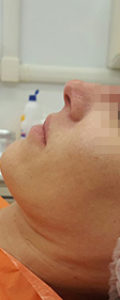 Dott.ssa Franca Sbriccoli – Rinoplastica non chirurgica